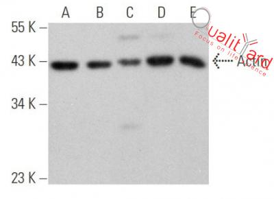 Actin Antibody (C-2)