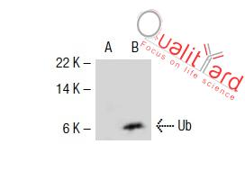 Ub Antibody (P4D1)